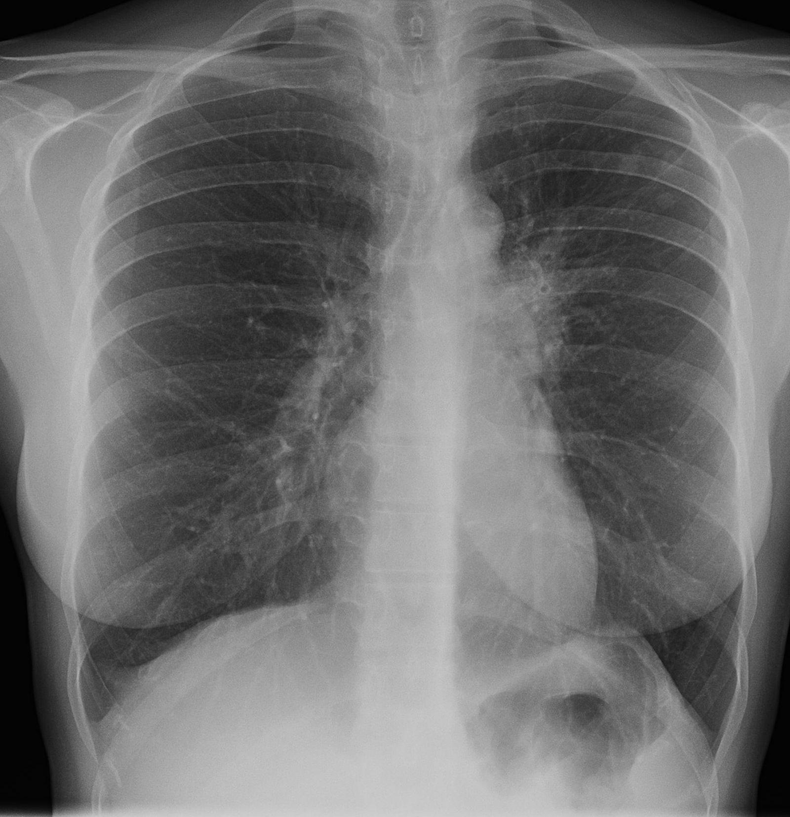 longfoto met tuberculose