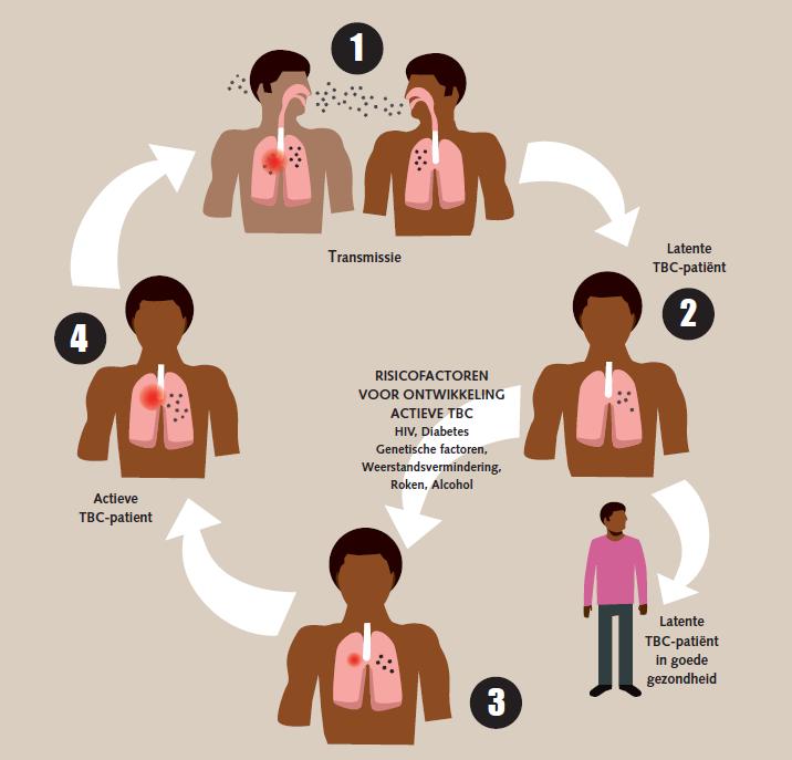 is turberculose altijd besmettelijk - illustratie